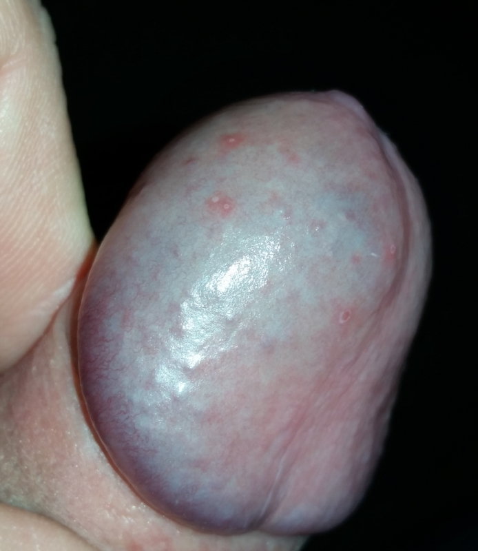 Just pain in tip of clitoris would