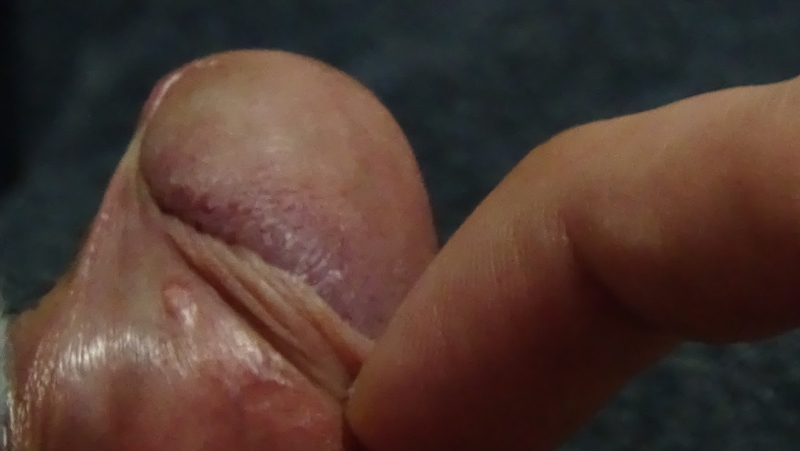 Hard white pimple on penis