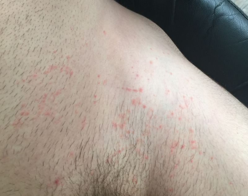Non Rash Area Underwear ItchyDermatology Forums Patient rtdshQ