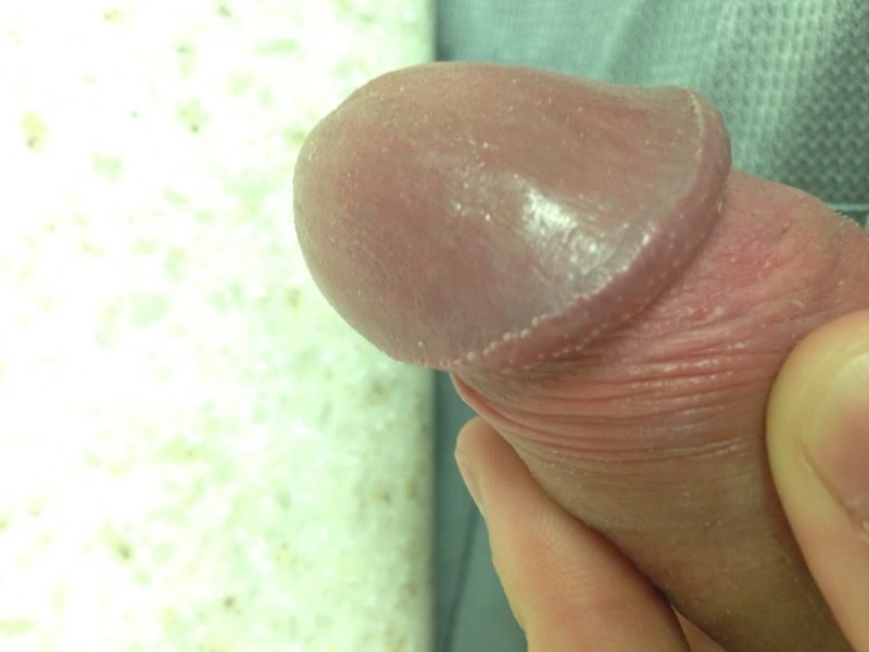 Small Bumps On Head Of Penis 110