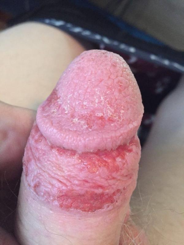Elf nude porn