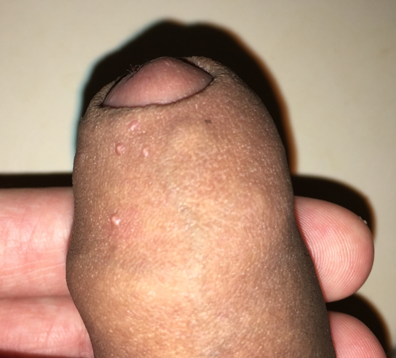 Clit bump pictures