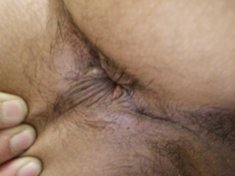 Small white bumps in anus — img 4