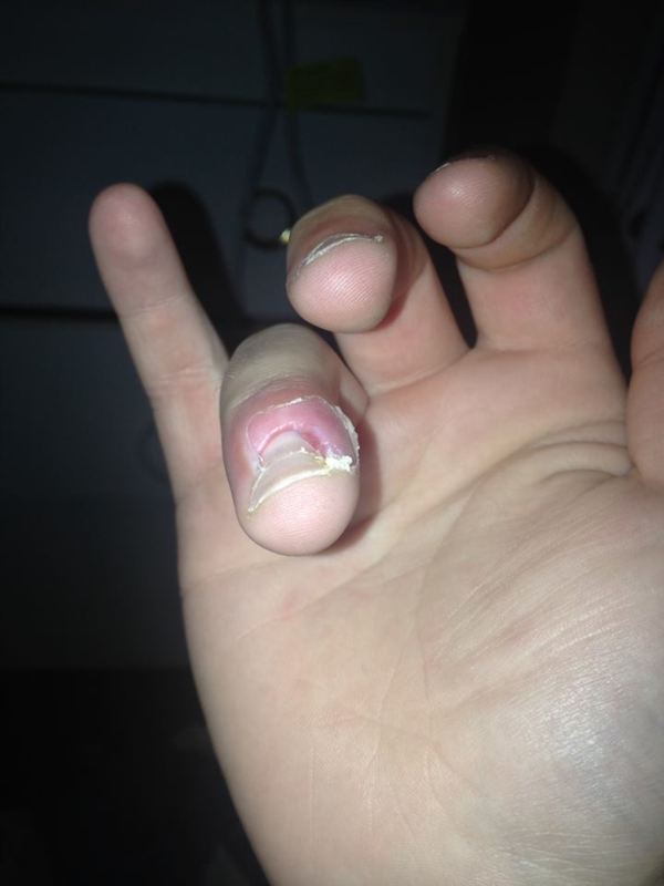 Finger infection near nail has \'eaten\' my skin?!? | Nail Disorders ...