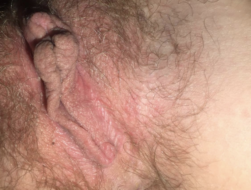 Sore vagina after sex