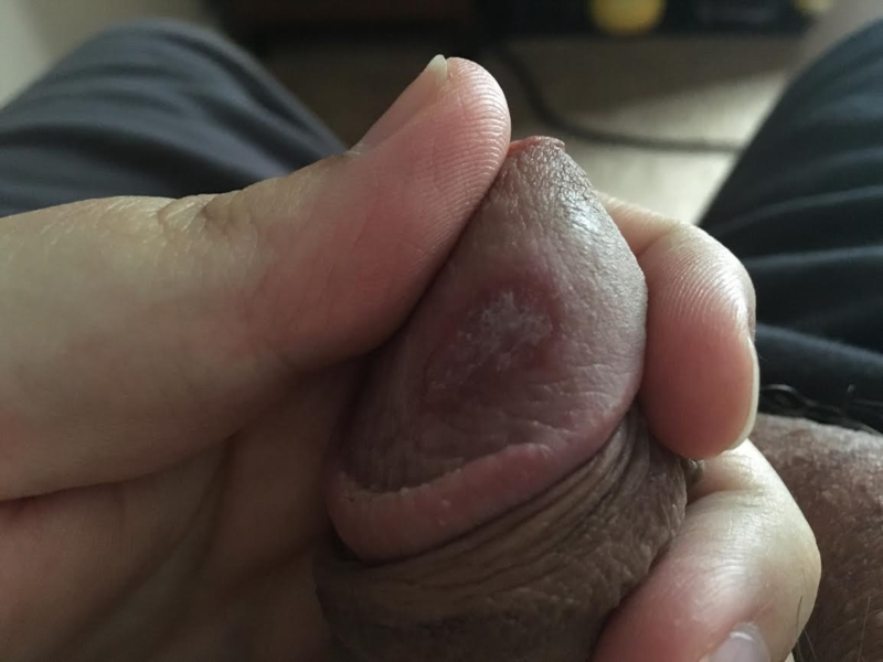 Slightly red penis head