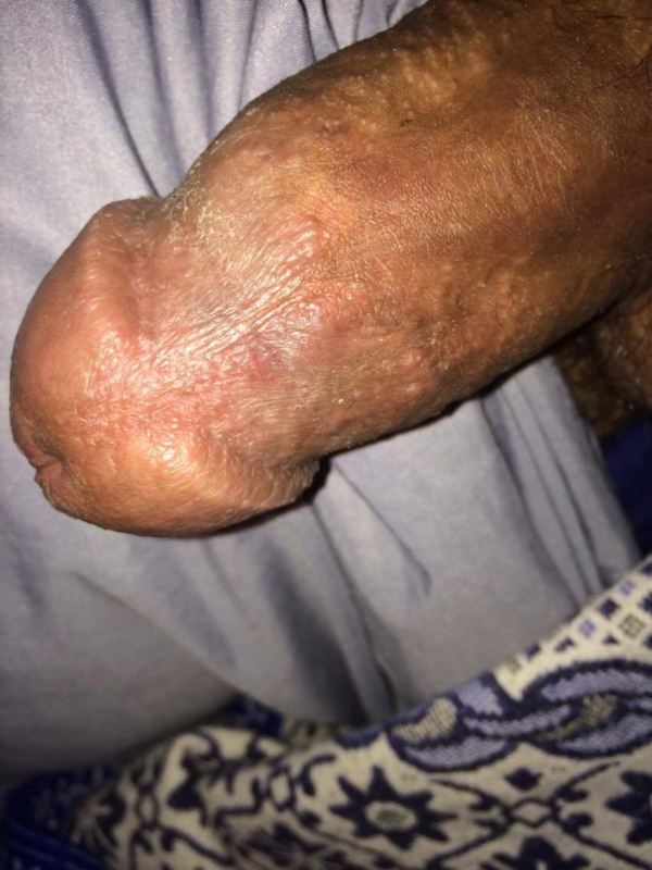 Skin Rash And Sexually Transmitted Diseases