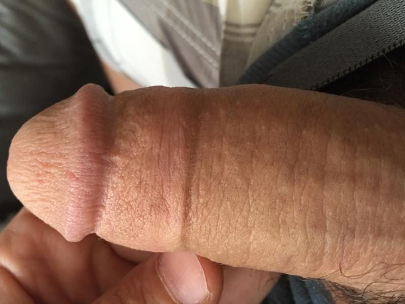 Tip of penis white