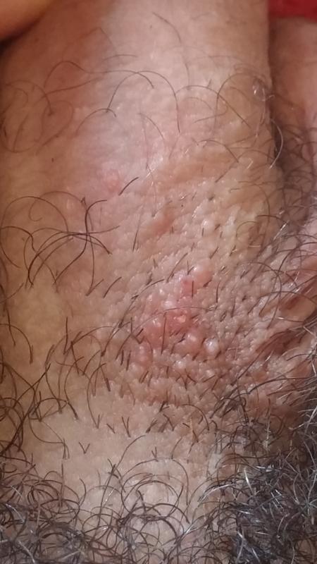 on of shiny penis base skin