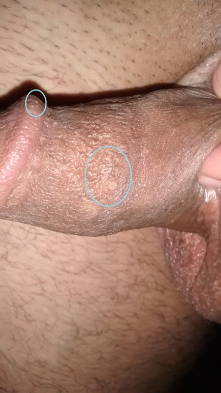 Oral sex genital warts, sex fuck hot gand