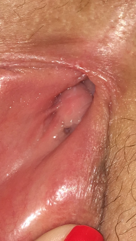 Bumps on vaginal wall