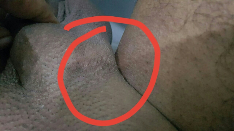 penis Rashes near