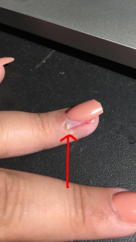 Hit my acrylic nail resulting in lifting my real nail and I believe