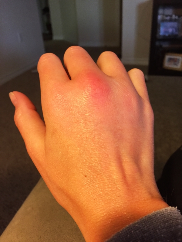 Ring Finger Swollen And Itching