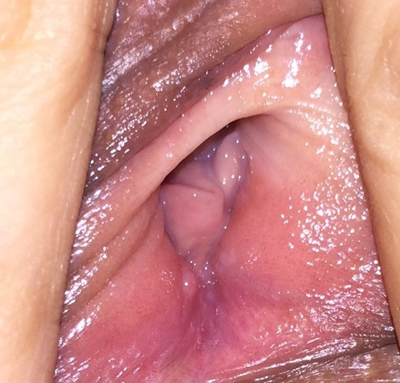 Blister-Abscess Under Vaginal Opening-8208
