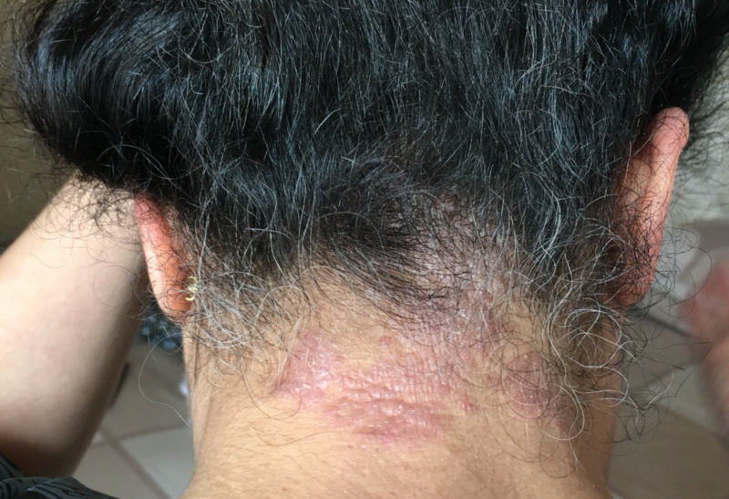 Please Help Me With This Behind My Neck And Hairline Eczema