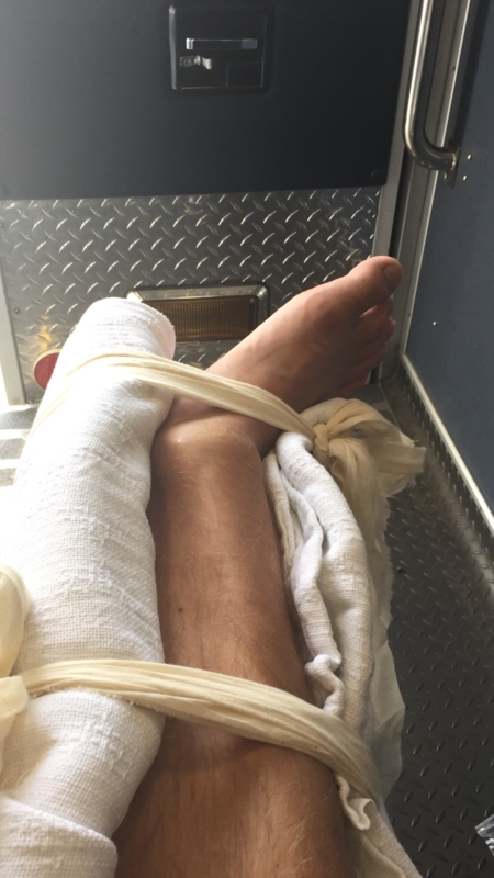 4 weeks post ankle surgery | Ankle Problems | Forums | Patient