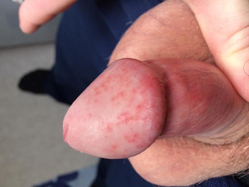 Rash Develops On Penis After Masturbation