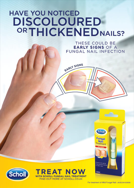 Have you noticed discoloured or thickened nails? Treat now with Scholl Fungal Nail Treatment