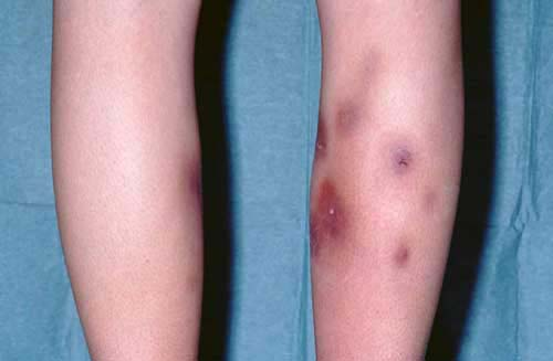 Erythema Nodosum Natural Treatment