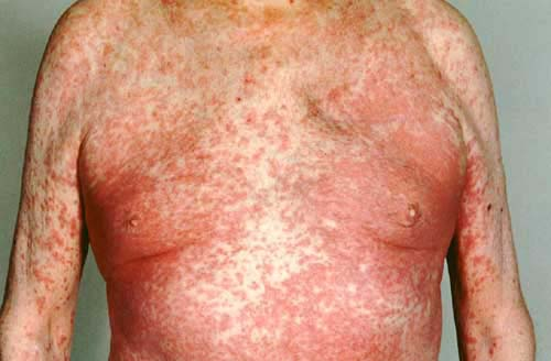 DRUG RASH (OM15a.jpg). Fig. 1. A generalised fixed drug eruption.
