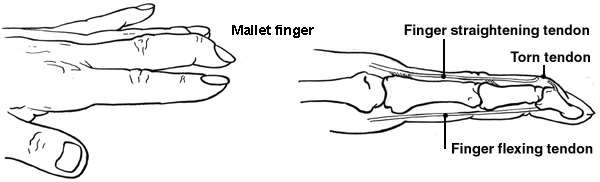Diagram of the hand showing mallet finger