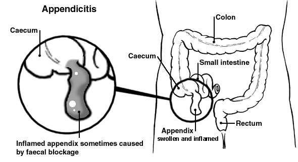 Diagram of the bowel showing an inflamed appendix