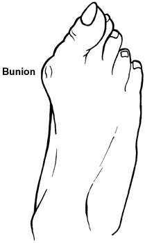Diagram of the foot showing a bunion