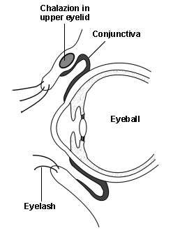 Cross-section diagram of an eye with chalazion in the upper eyelid