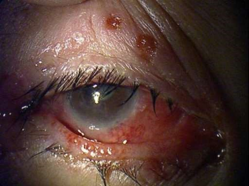 open access image of herpes simplex eye infection.