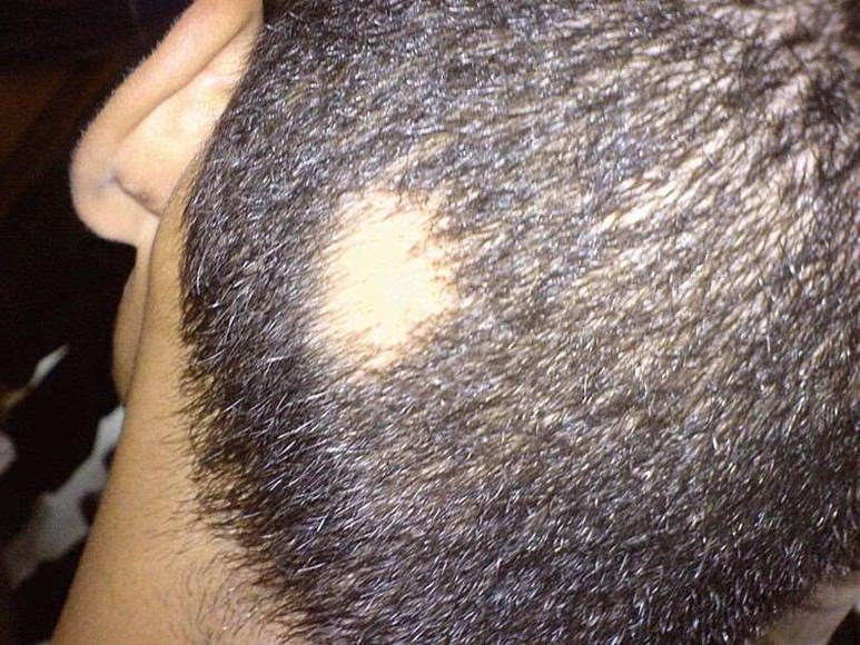 Alopecia areata on back of head