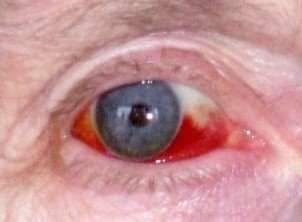 Subconjunctival Haemorrhage