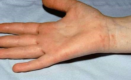SCABIES HAND CROPPED