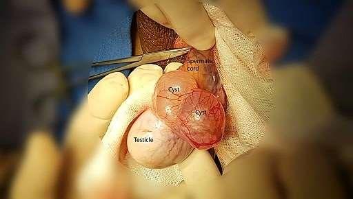 Epididymal cyst