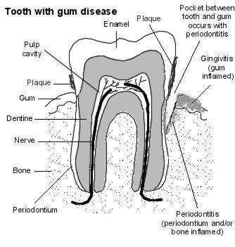 tooth with gum disease