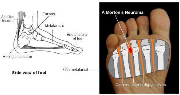 Toe anatomy ligaments