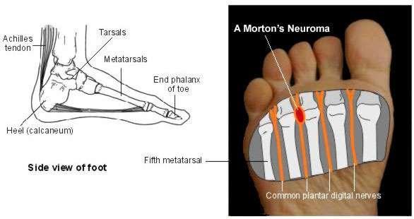 mortons neuroma