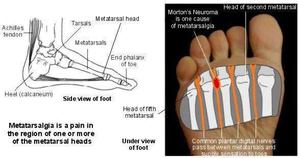 End bottom of foot pain