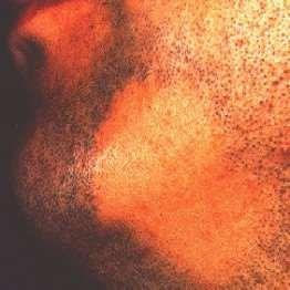 alopecia areata beard