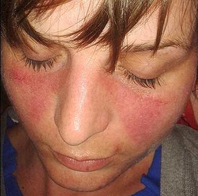 The butterfly rash of lupus