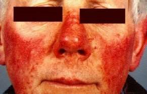 rosacea on nose and cheeks