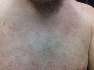 Prickly heat rash on chest
