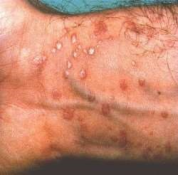 painless rash on penis