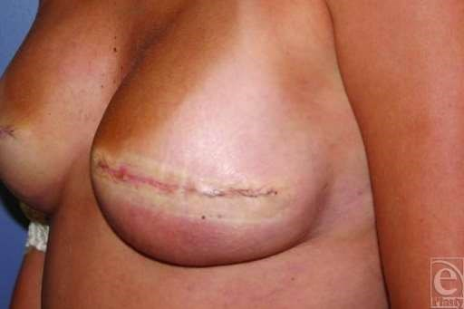 Cellulitis breast after reconstruction surgery