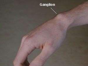 Ganglion of wrist