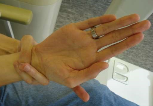 Marfan syndrome wrist sign