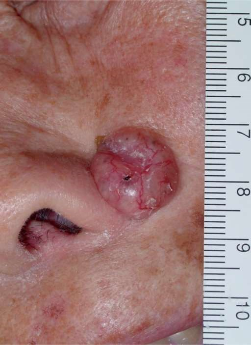 Advanced nodular BCC