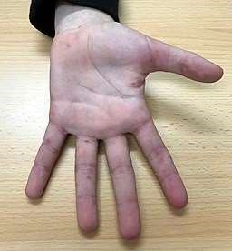 Scabies on hand and fingers