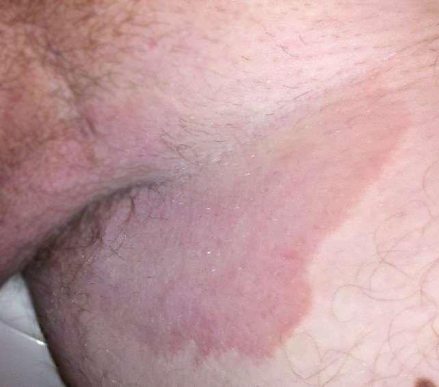 Fungal groin infection (tinea cruris)