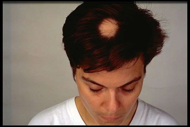 Alopecia areata on a woman's head